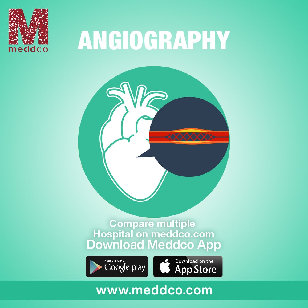 What is coronary angiography?