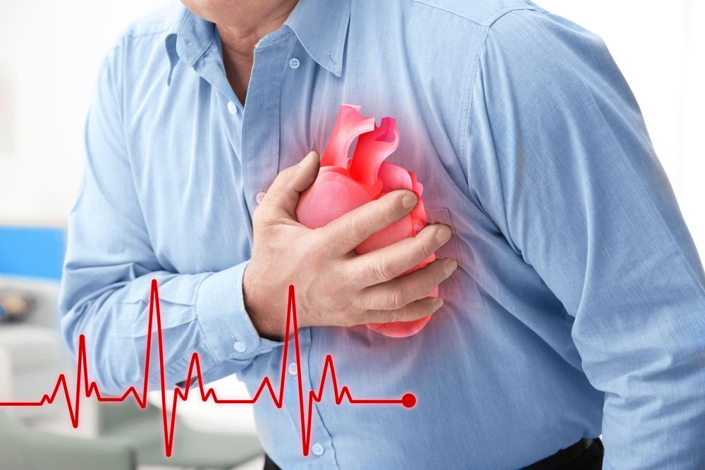 How to protect the heart during the COVID 19 pandemic