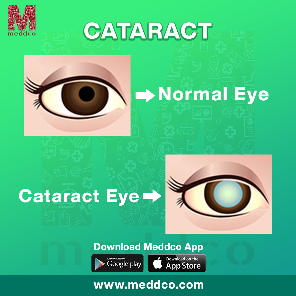 CATARACT-WHAT COULD LEAD TO CATARACT