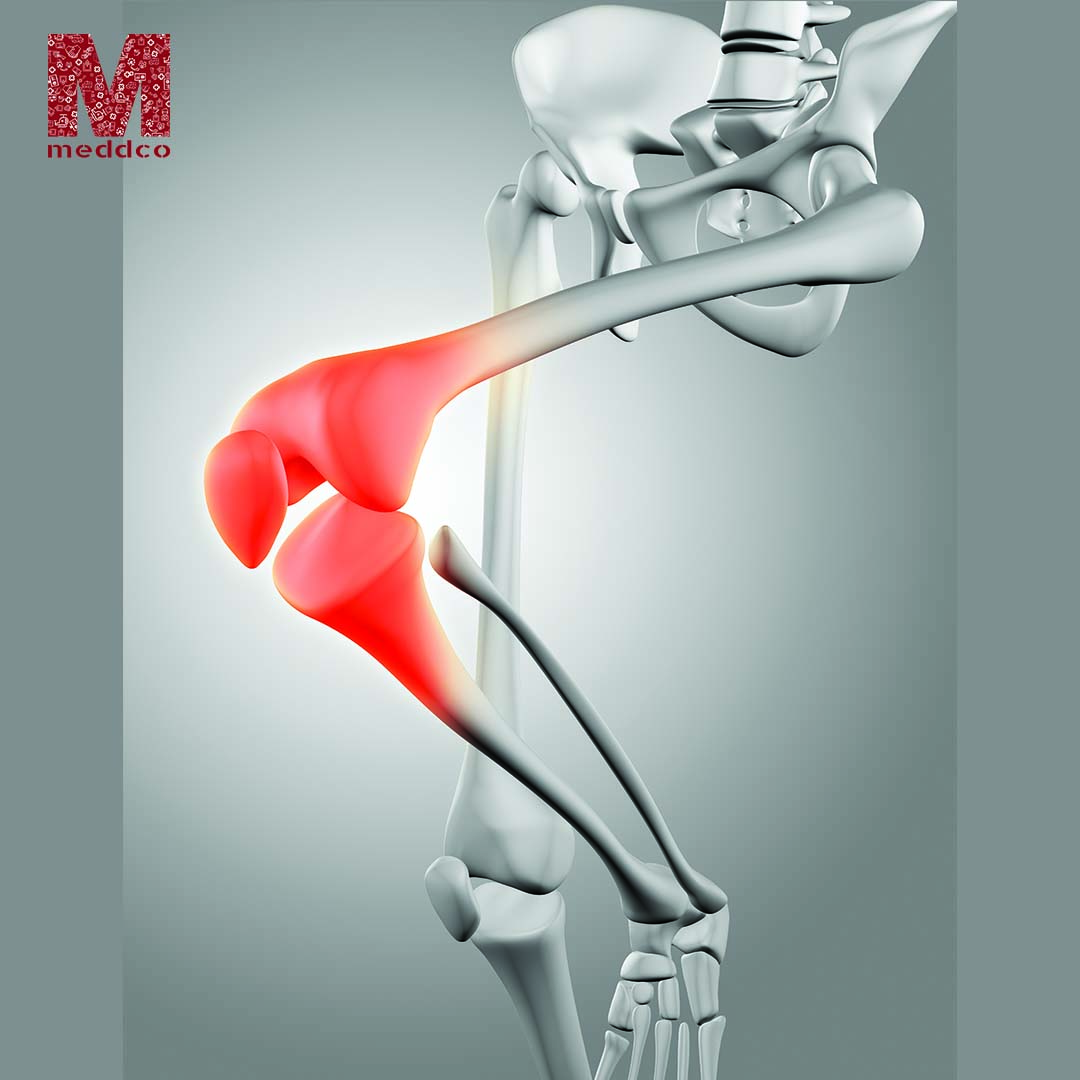 Why does one need Knee Replacement Surgery?